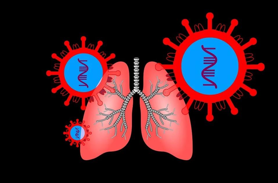 Covid 19 Une Pneumonie Pas Comme Les Autres Realites Biomedicales
